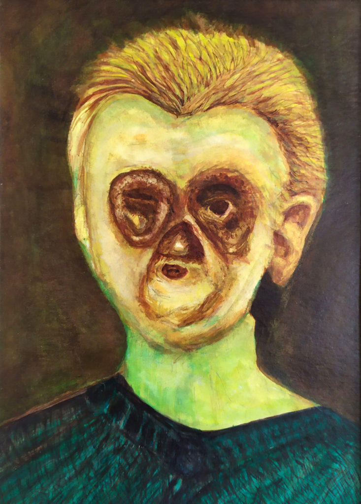 Syphilis Girl Final 733x1024 - Schloss Tegal Art Gallery - Works by RL Schneider